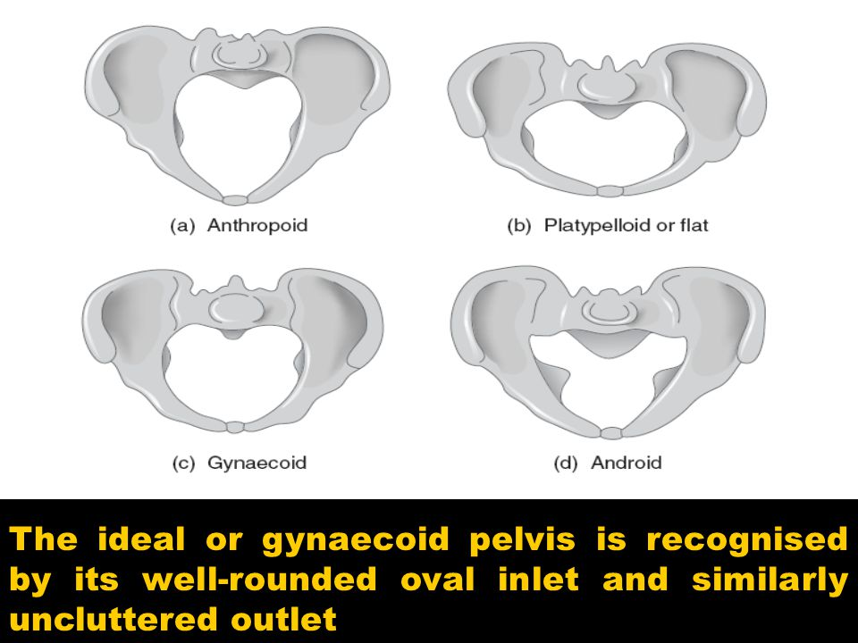 The ideal or gynaecoid pelvis is recognised by its well-rounded oval inlet and similarly uncluttered outlet