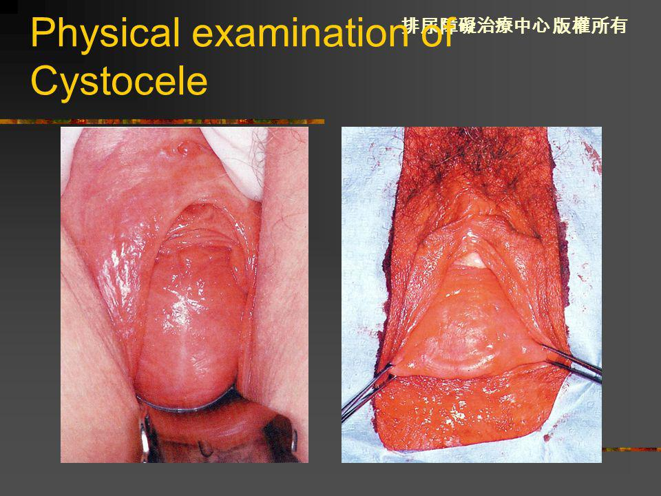 Physical examination of Cystocele