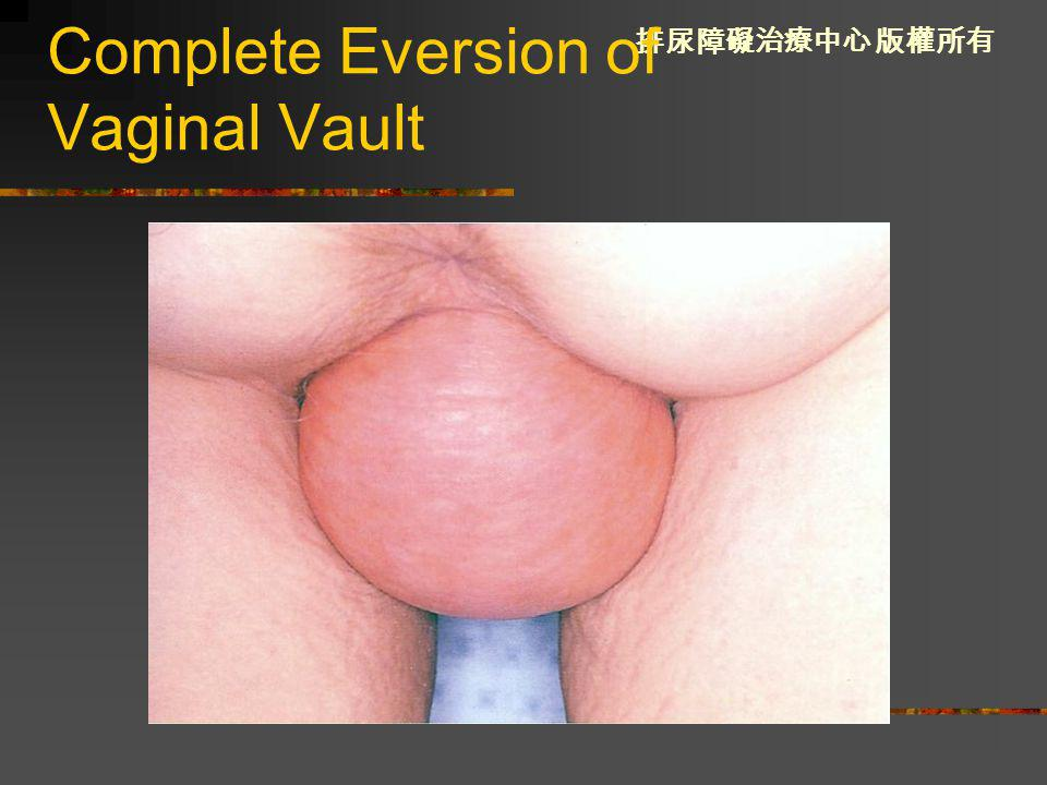 Complete Eversion of Vaginal Vault
