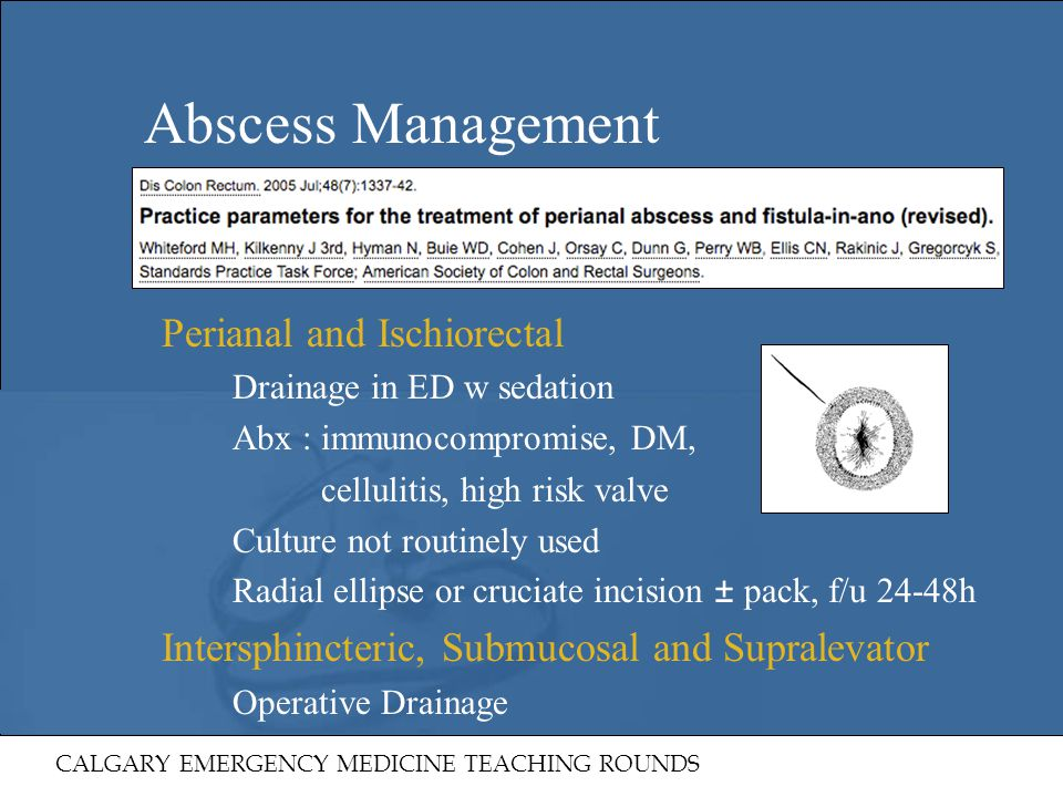 Abscess Management Perianal and Ischiorectal