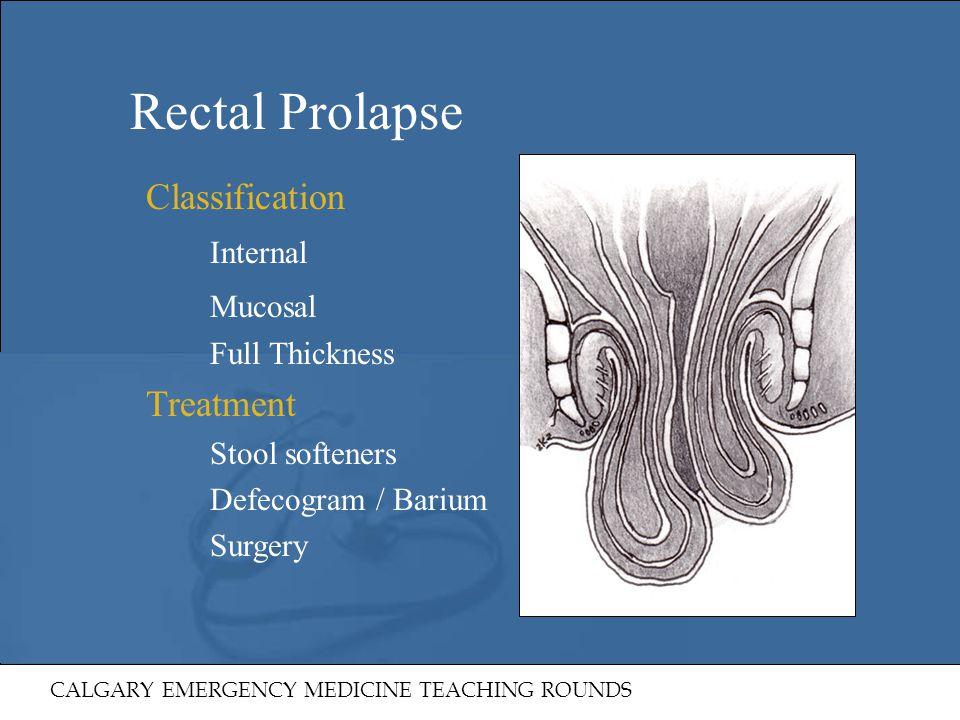 Rectal Prolapse Classification Internal Mucosal Treatment