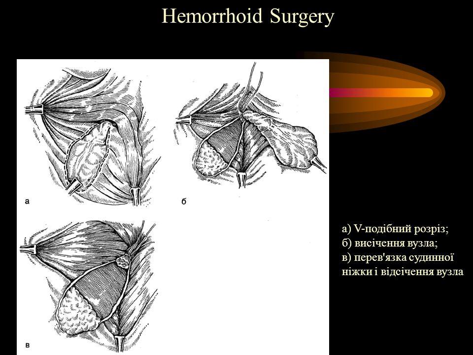 Hemorrhoid Surgery а) V-подібний розріз; б) висічення вузла;