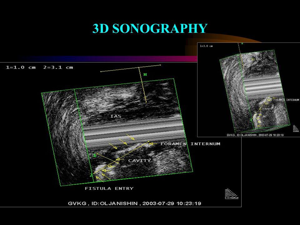 3D SONOGRAPHY