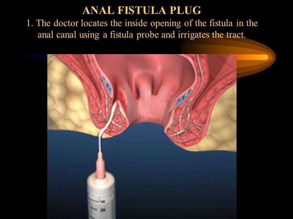 ANAL FISTULA PLUG 1.