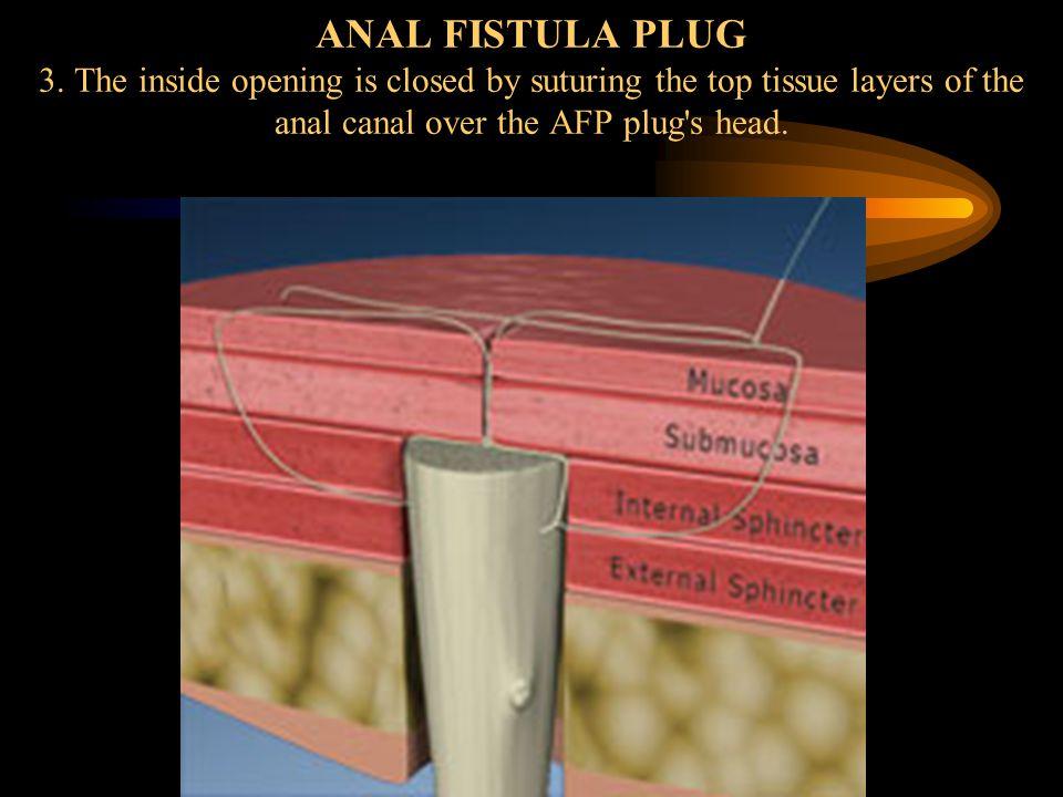 ANAL FISTULA PLUG 3.