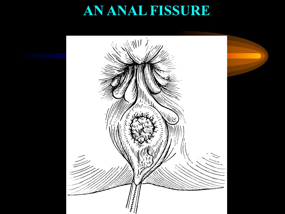 AN ANAL FISSURE