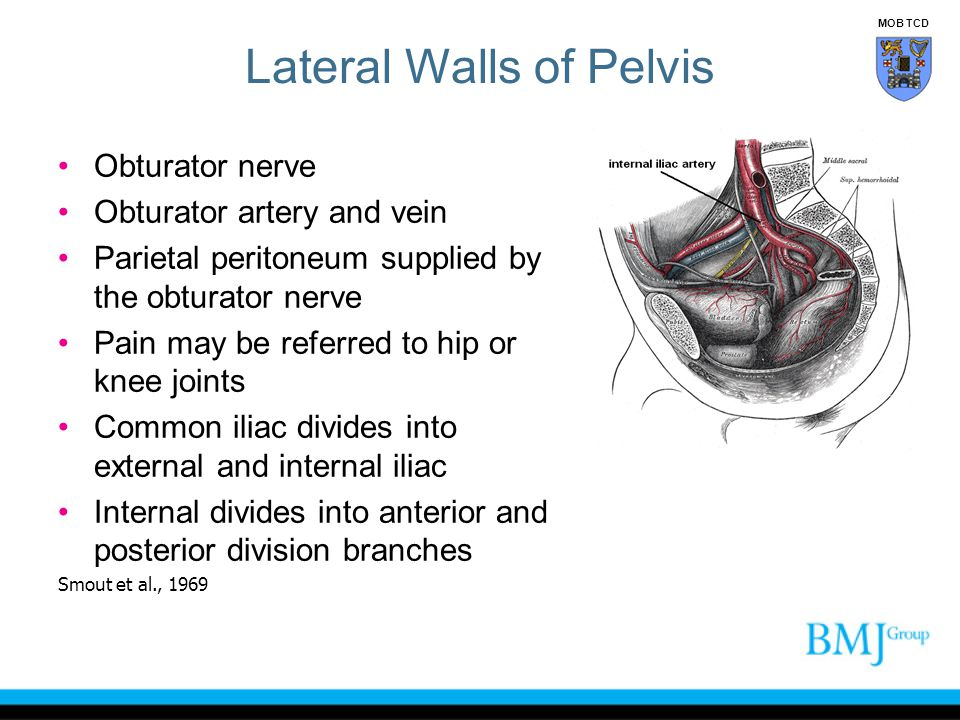 Lateral Walls of Pelvis