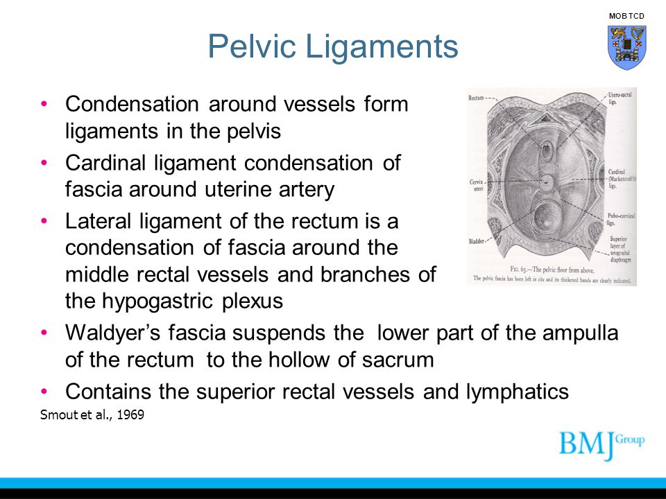 Pelvic Ligaments MOB TCD. Condensation around vessels form ligaments in the pelvis.