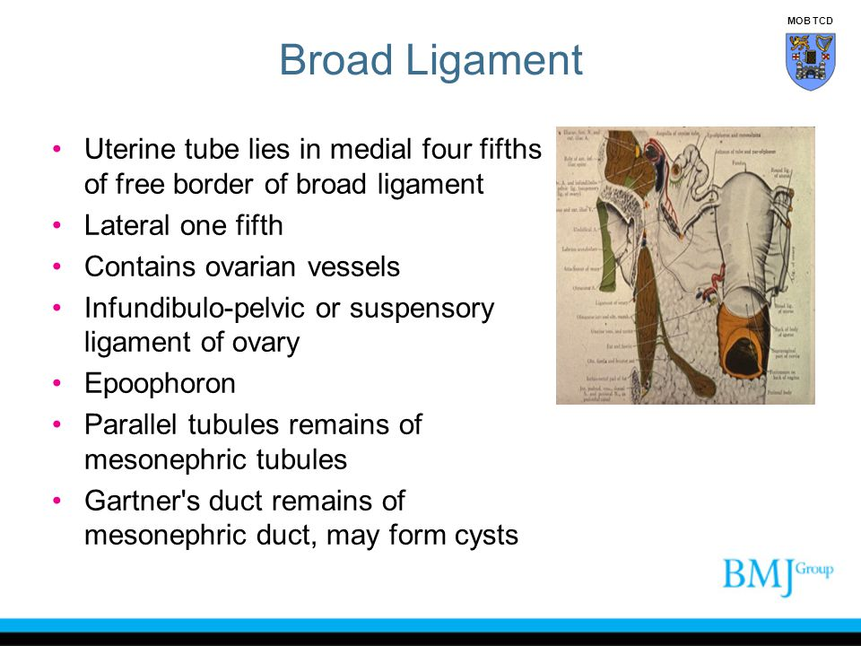 Broad Ligament MOB TCD. Uterine tube lies in medial four fifths of free border of broad ligament. Lateral one fifth.