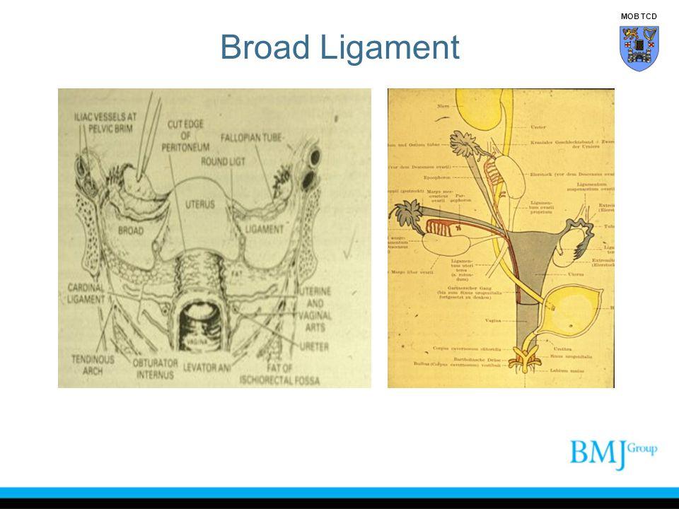 Broad Ligament MOB TCD