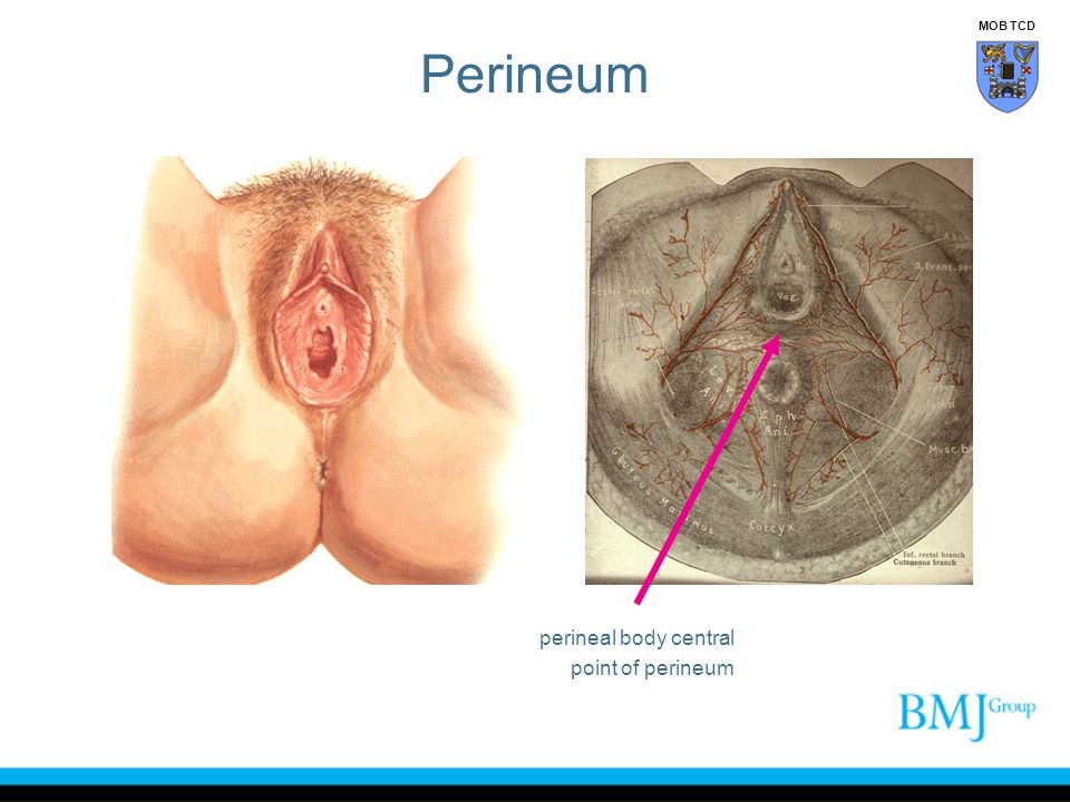 Perineum MOB TCD perineal body central point of perineum