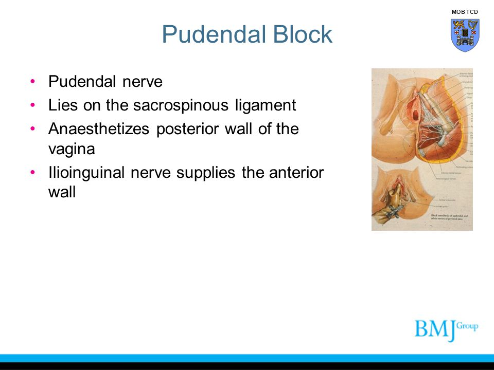 Pudendal Block Pudendal nerve Lies on the sacrospinous ligament