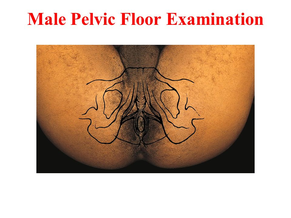 Male Pelvic Floor Examination
