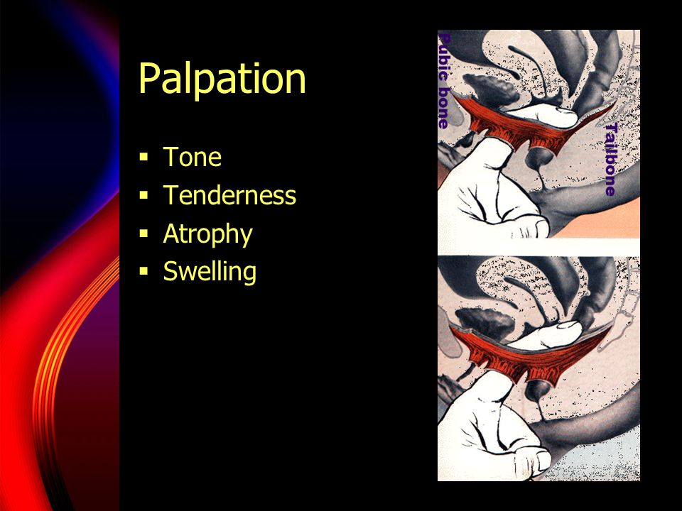 Palpation Tone Tenderness Atrophy Swelling