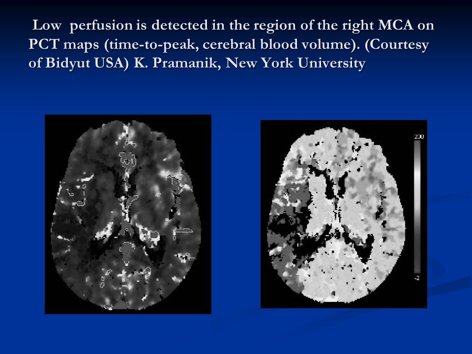 Low perfusion is detected in the region of the right MCA on PCT maps (time-to-peak, cerebral blood volume).