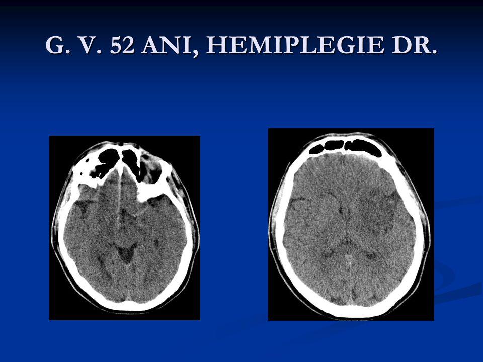 G. V. 52 ANI, HEMIPLEGIE DR.
