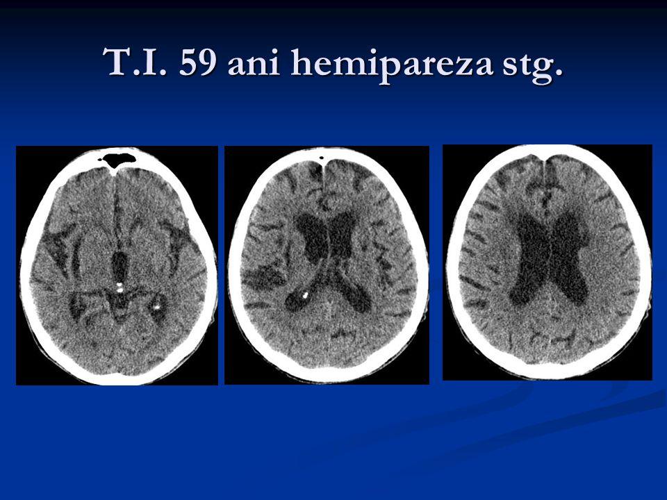 T.I. 59 ani hemipareza stg.