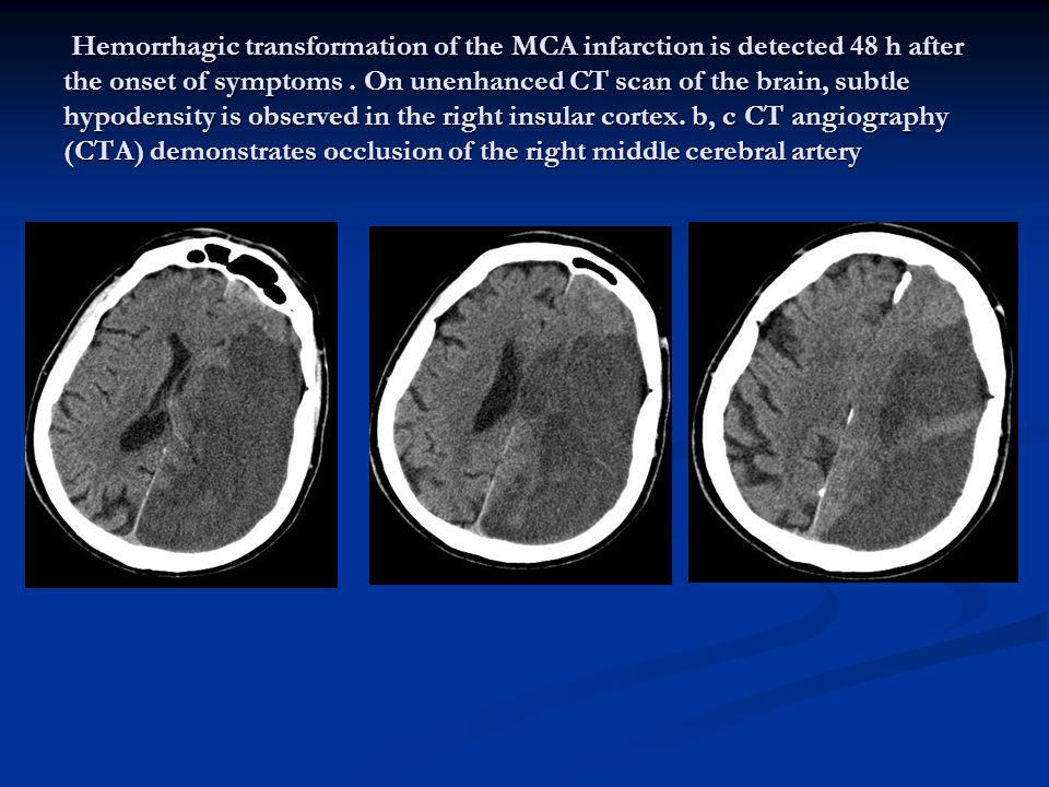 Hemorrhagic transformation of the MCA infarction is detected 48 h after the onset of symptoms .