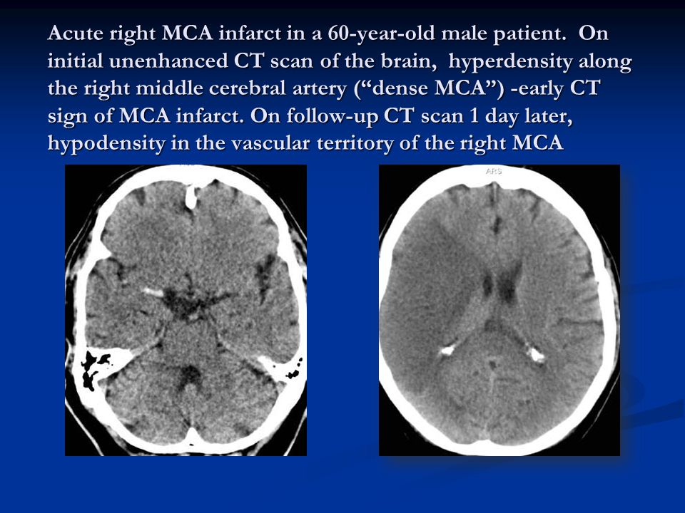 Acute right MCA infarct in a 60-year-old male patient