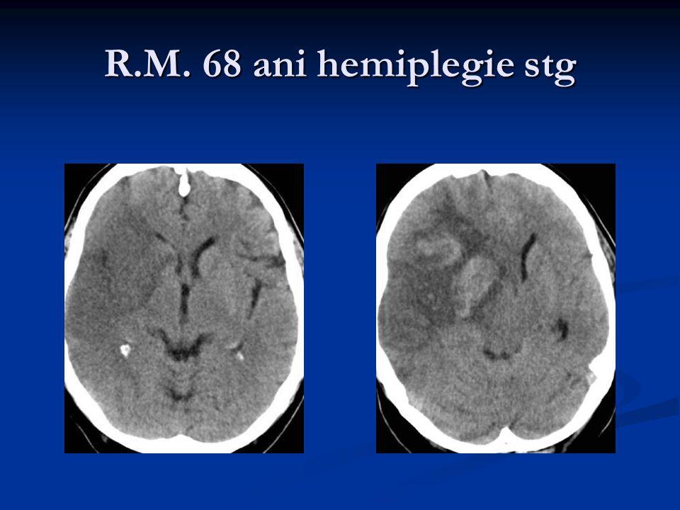 R.M. 68 ani hemiplegie stg