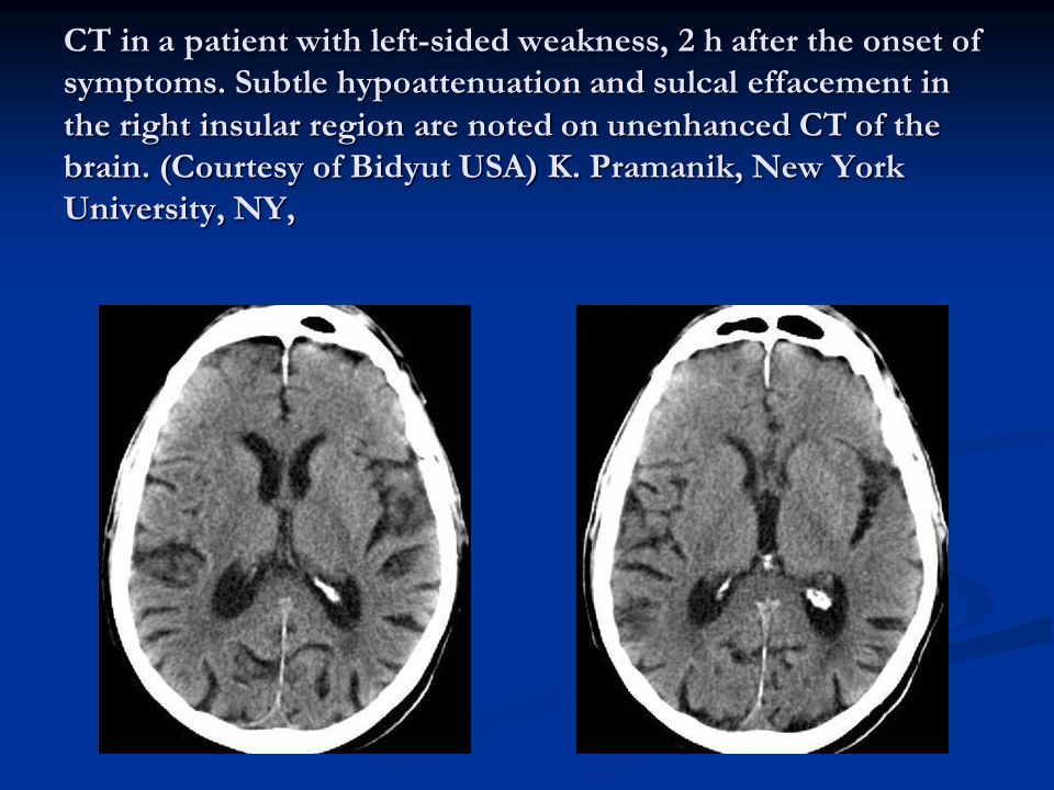 CT in a patient with left-sided weakness, 2 h after the onset of symptoms.