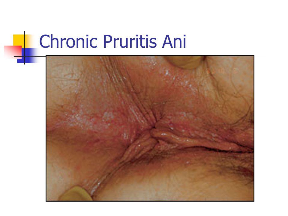 Chronic Pruritis Ani