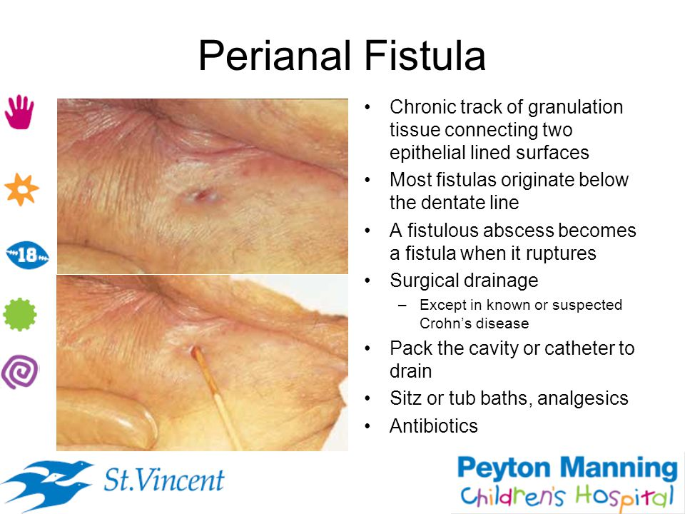 Perianal Fistula Chronic track of granulation tissue connecting two epithelial lined surfaces. Most fistulas originate below the dentate line.