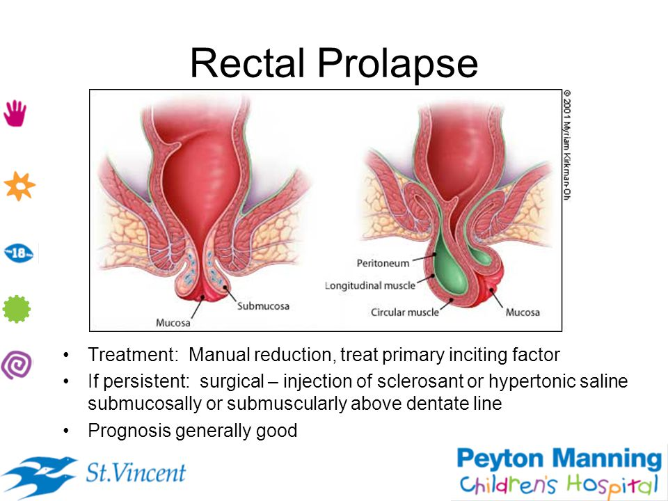 Rectal Prolapse Treatment: Manual reduction, treat primary inciting factor.
