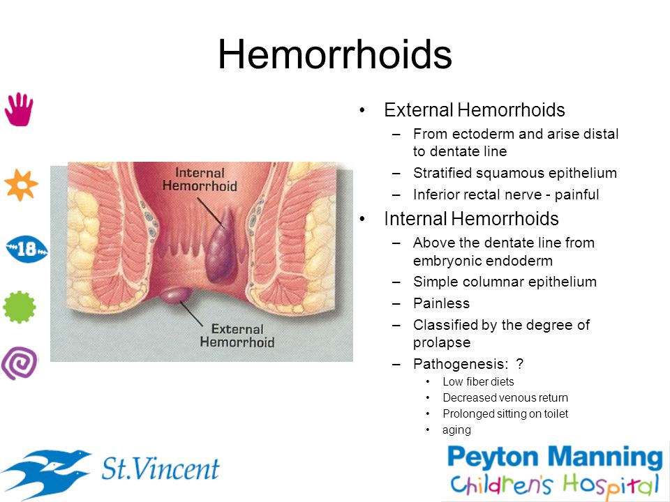Hemorrhoids External Hemorrhoids Internal Hemorrhoids