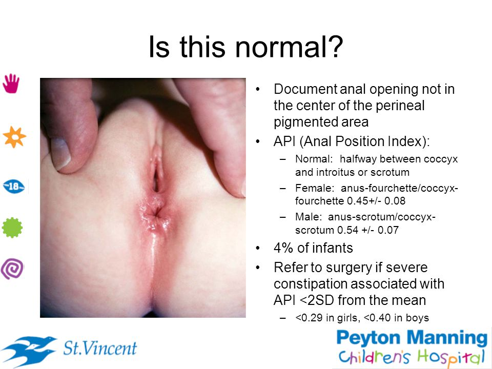 Is this normal Document anal opening not in the center of the perineal pigmented area. API (Anal Position Index):