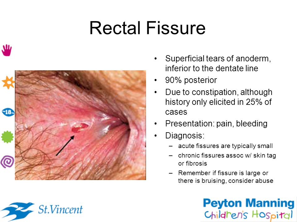 Rectal Fissure Superficial tears of anoderm, inferior to the dentate line. 90% posterior.