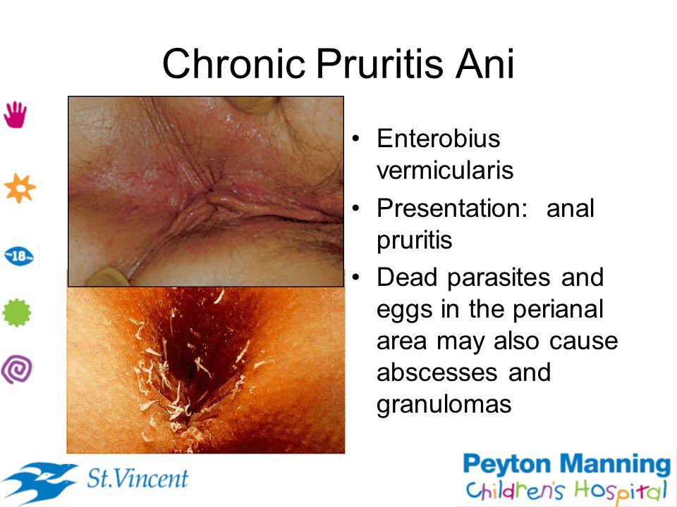 Chronic Pruritis Ani Enterobius vermicularis