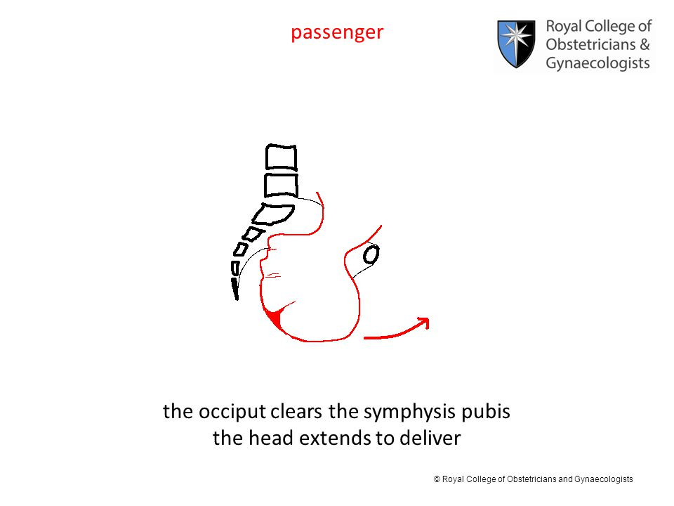 the occiput clears the symphysis pubis the head extends to deliver