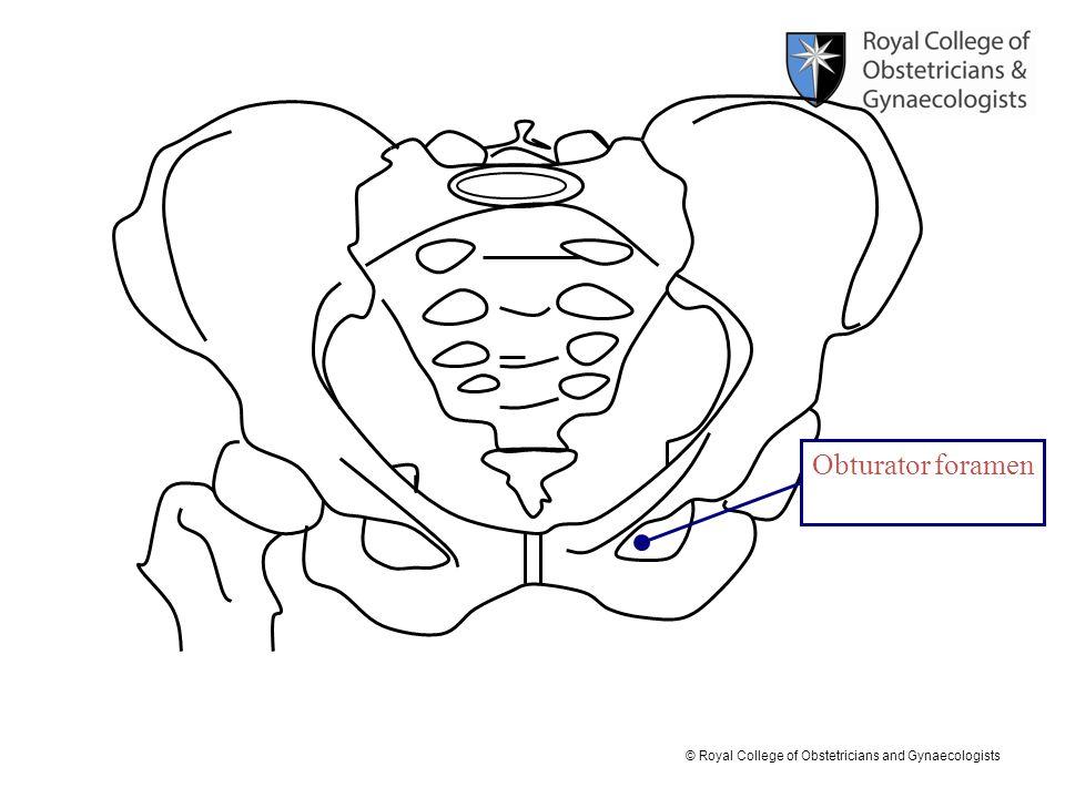 Obturator foramen
