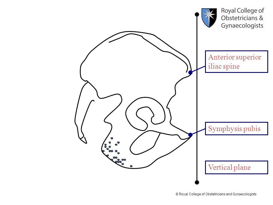 Anterior superior iliac spine