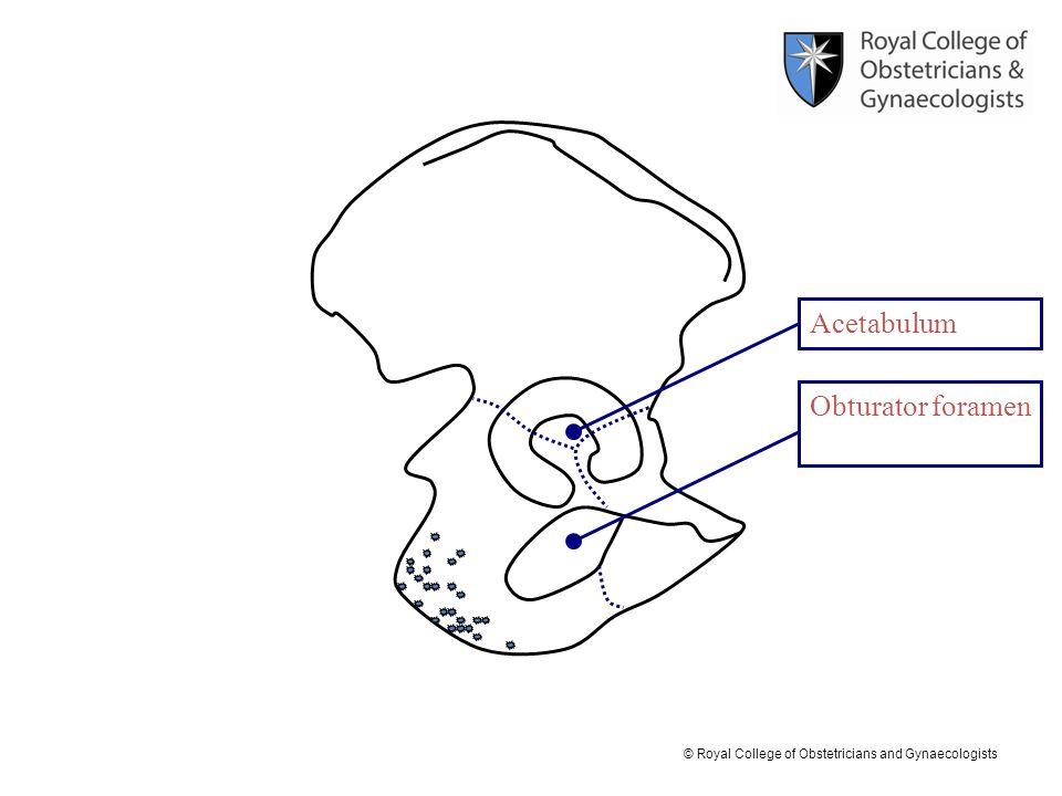 Acetabulum Obturator foramen