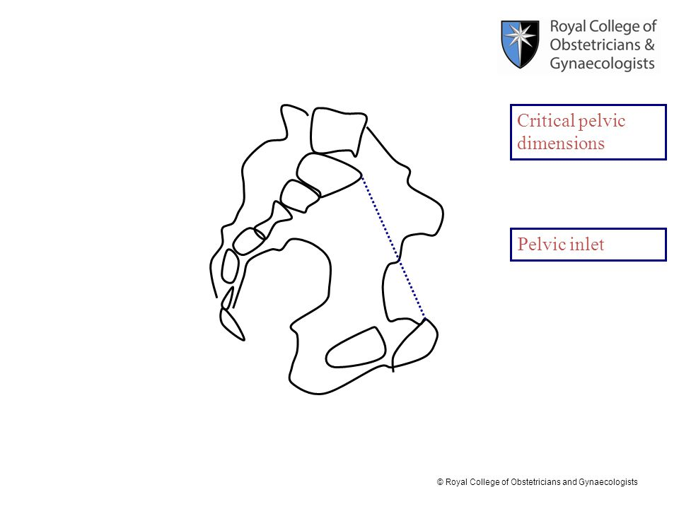 Critical pelvic dimensions