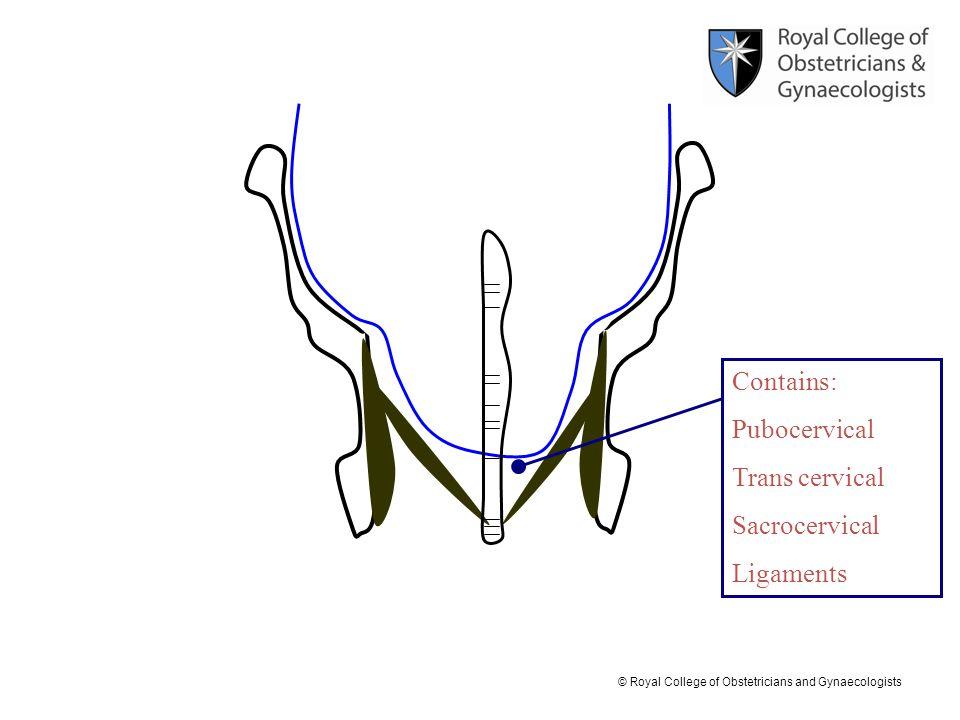 Contains: Pubocervical Trans cervical Sacrocervical Ligaments