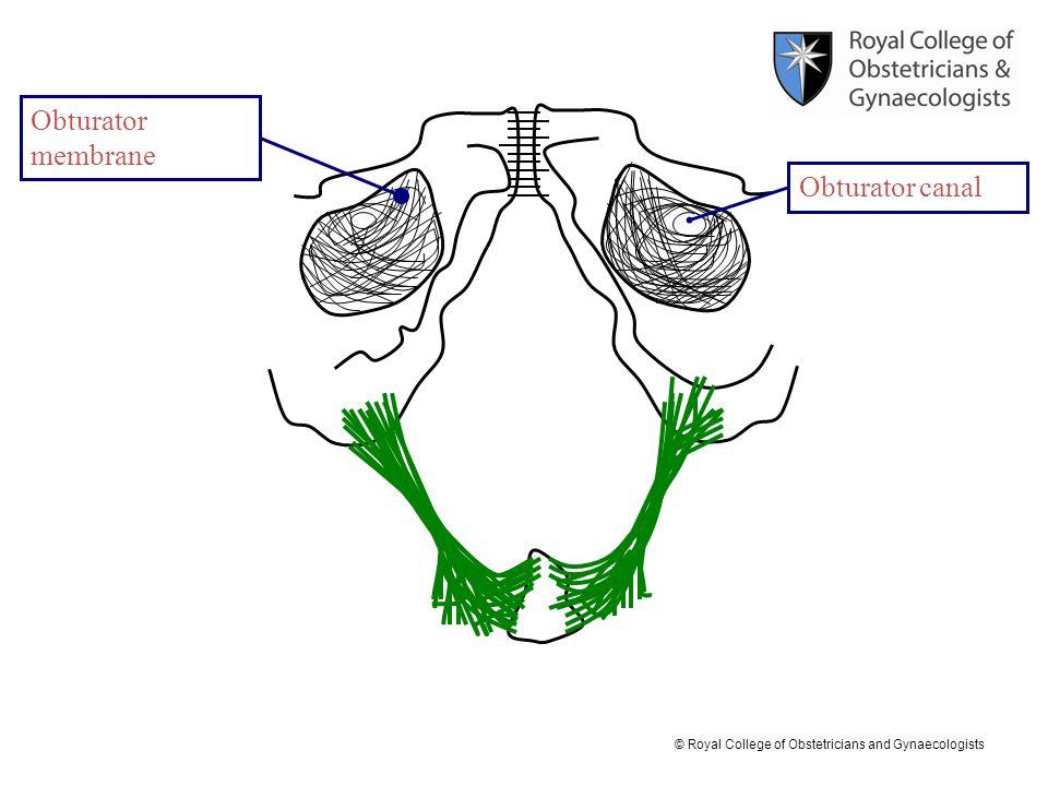Obturator membrane Obturator canal