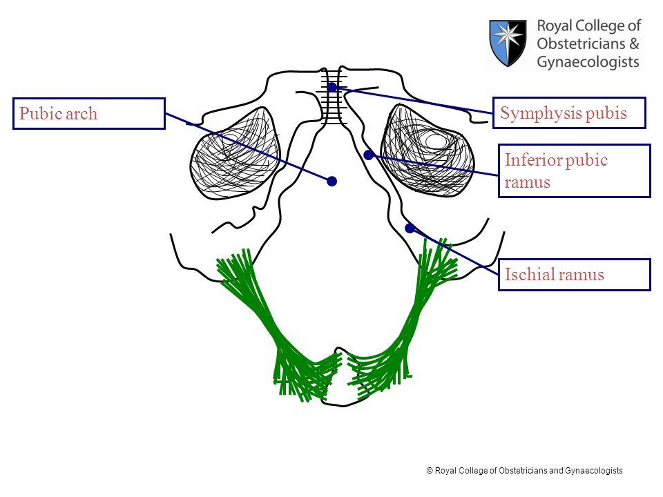 Pubic arch Symphysis pubis Inferior pubic ramus Ischial ramus