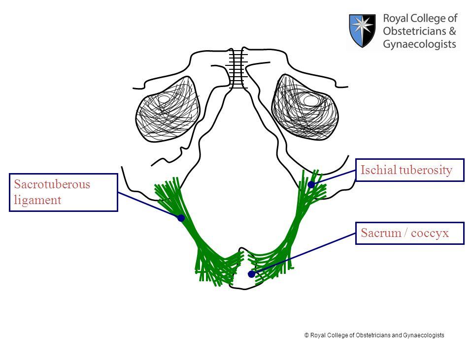 Ischial tuberosity Sacrotuberous ligament Sacrum / coccyx