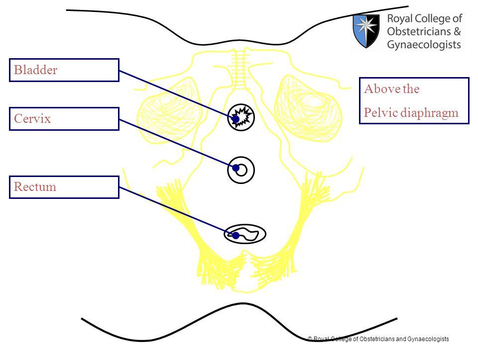 Bladder Above the Pelvic diaphragm Cervix Rectum