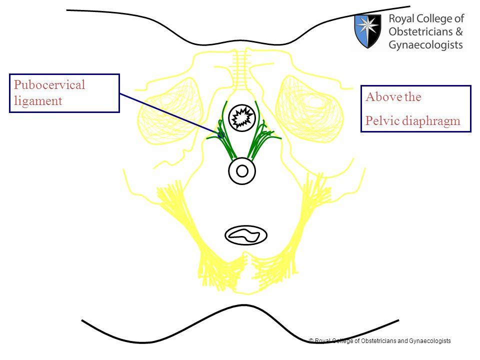 Pubocervical ligament