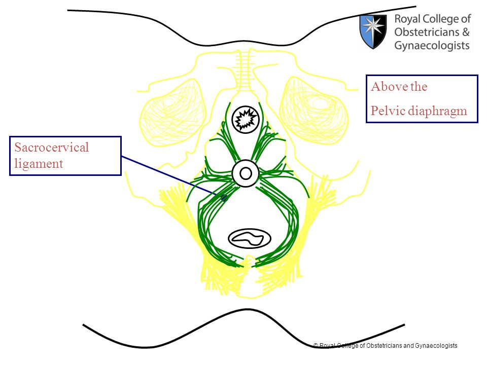Above the Pelvic diaphragm Sacrocervical ligament