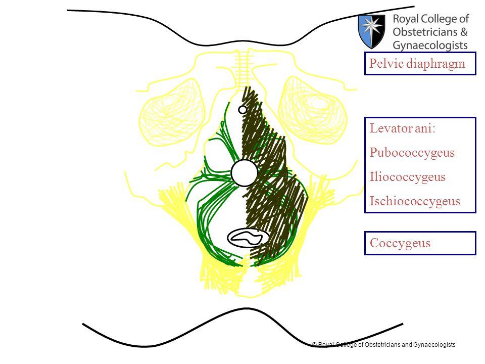 Pelvic diaphragm Levator ani: Pubococcygeus Iliococcygeus Ischiococcygeus Coccygeus
