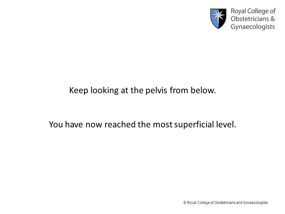 Keep looking at the pelvis from below.