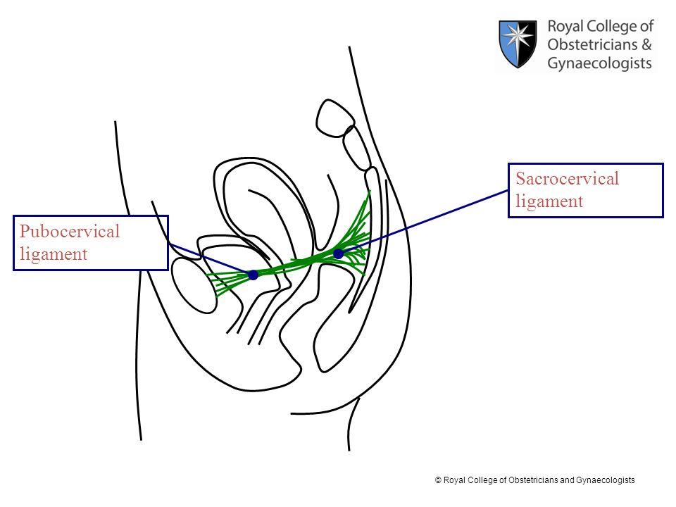 Sacrocervical ligament