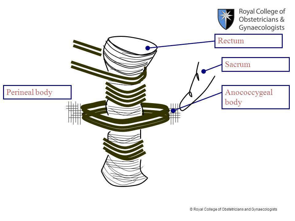 Rectum Sacrum Perineal body Anococcygeal body