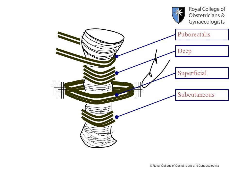Puborectalis Deep Superficial Subcutaneous