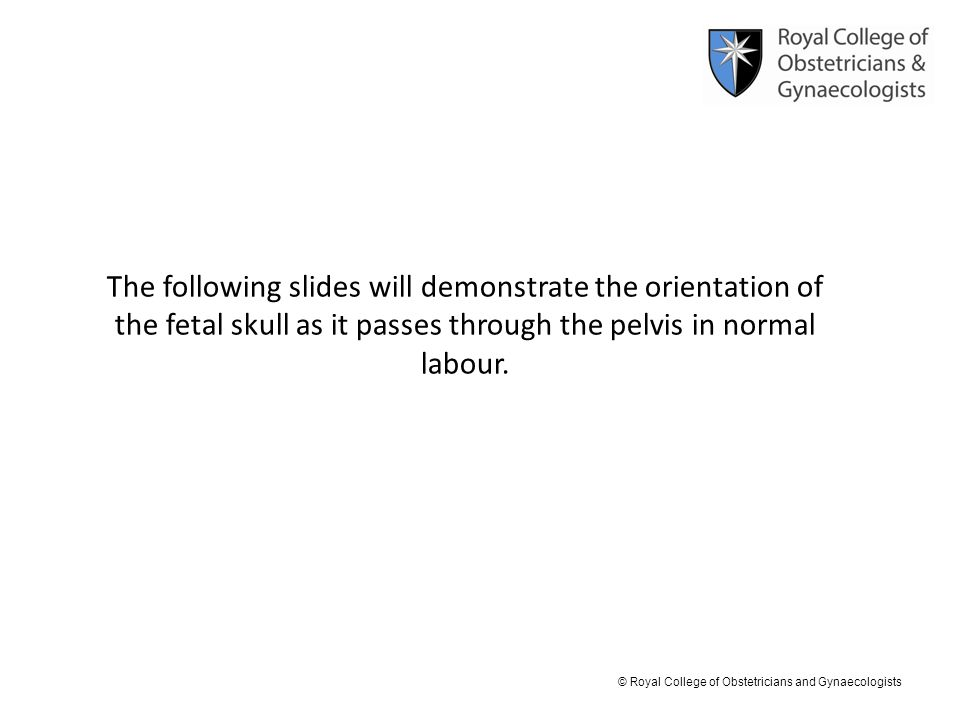 The following slides will demonstrate the orientation of the fetal skull as it passes through the pelvis in normal labour.
